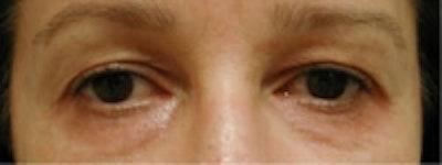 Eyelid Rejuvenation Gallery - Patient 5930169 - Image 2