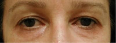 Eyelid Rejuvenation Gallery - Patient 5930169 - Image 2