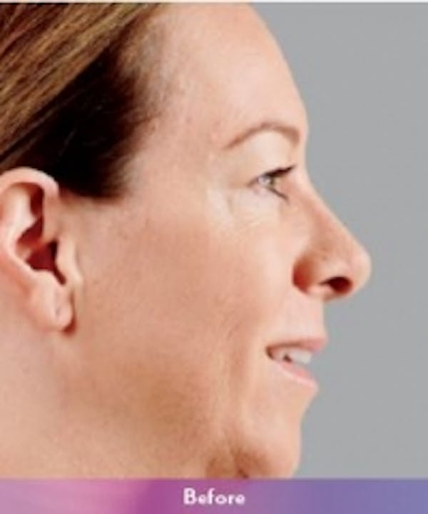 Fillers Gallery - Patient 5930171 - Image 1