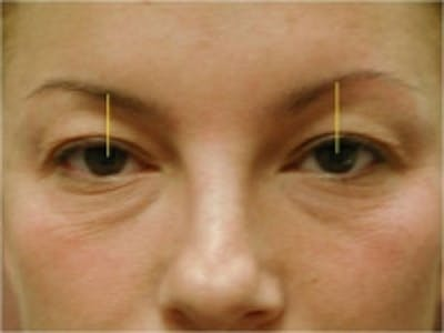 Eyelid Rejuvenation Gallery - Patient 5930170 - Image 1