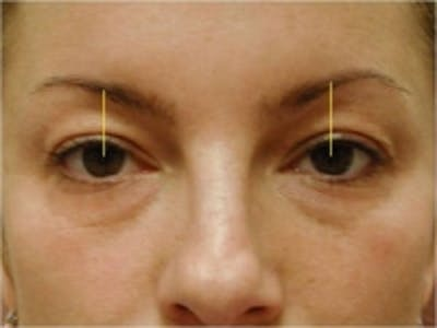 Eyelid Rejuvenation Gallery - Patient 5930170 - Image 2