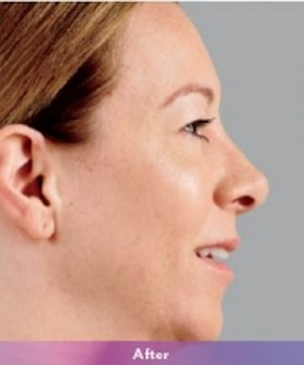 Fillers Gallery - Patient 5930171 - Image 2