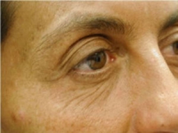 Eyelid Rejuvenation Gallery - Patient 5930173 - Image 1
