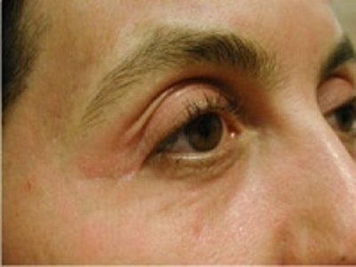 Eyelid Rejuvenation Gallery - Patient 5930173 - Image 2