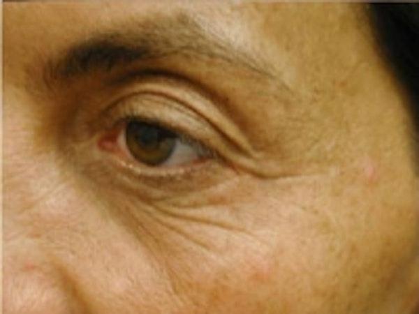 Eyelid Rejuvenation Gallery - Patient 5930173 - Image 3