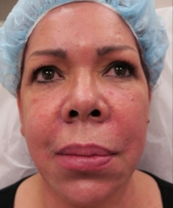 Fillers Gallery - Patient 5930172 - Image 2