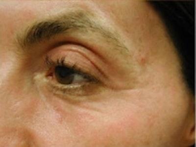 Eyelid Rejuvenation Gallery - Patient 5930173 - Image 4