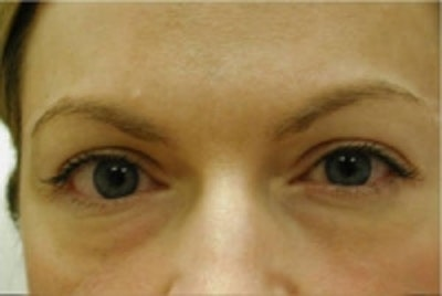 Eyelid Rejuvenation Gallery - Patient 5930178 - Image 1