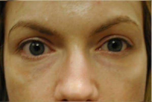 Eyelid Rejuvenation Gallery - Patient 5930178 - Image 2