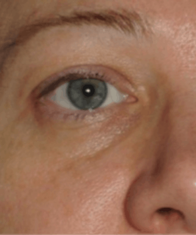 Eyelid Rejuvenation Gallery - Patient 5930179 - Image 1