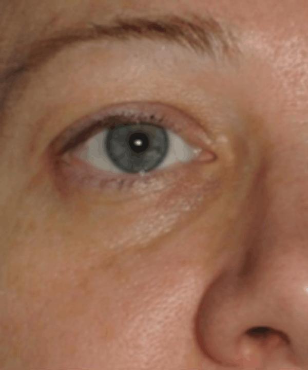 Eyelid Rejuvenation Gallery - Patient 5930179 - Image 1