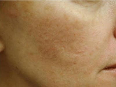 Acne Scarring Gallery - Patient 5930182 - Image 1
