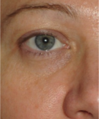 Eyelid Rejuvenation Gallery - Patient 5930179 - Image 2