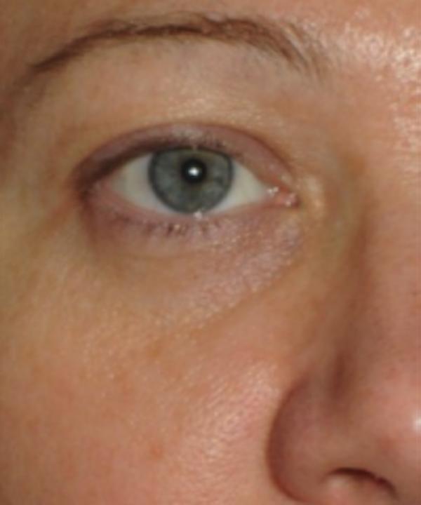 Eyelid Rejuvenation Gallery - Patient 5930179 - Image 2