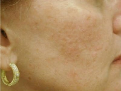 Acne Scarring Gallery - Patient 5930182 - Image 2