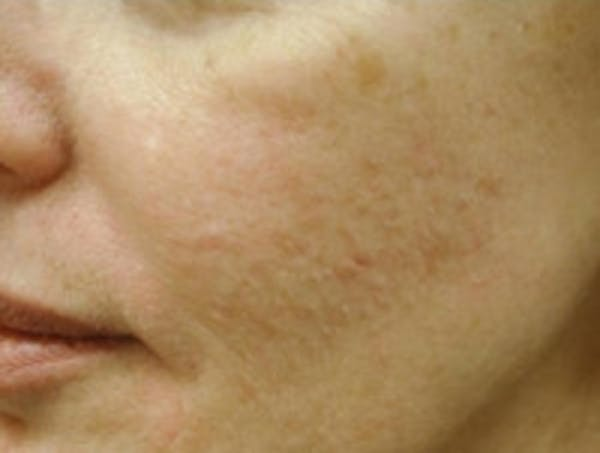 Acne Scarring Gallery - Patient 5930182 - Image 3