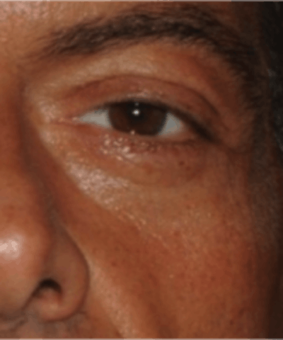 Eyelid Rejuvenation Gallery - Patient 5930183 - Image 10