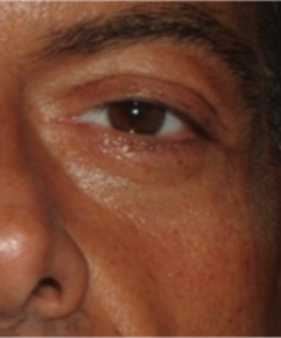 Eyelid Rejuvenation Gallery - Patient 5930183 - Image 1
