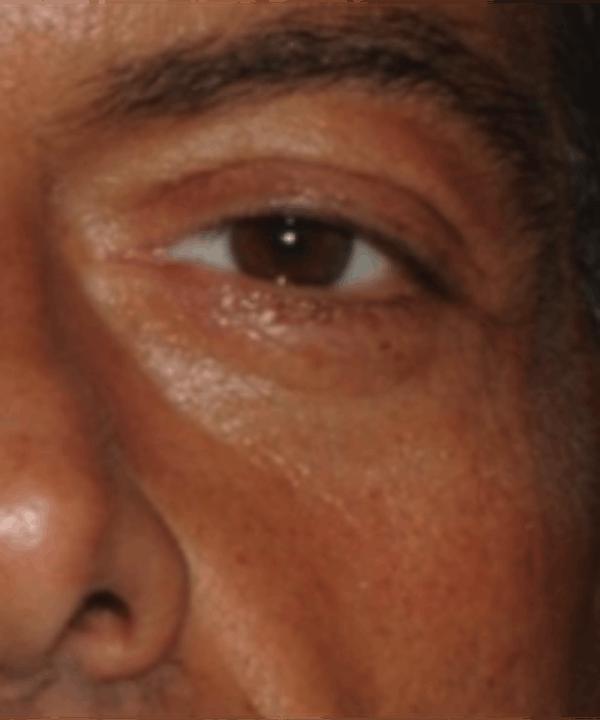 Eyelid Rejuvenation Gallery - Patient 5930183 - Image 1