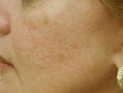 Acne Scarring Gallery - Patient 5930182 - Image 4
