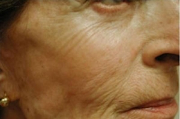 Fillers Gallery - Patient 5930184 - Image 1