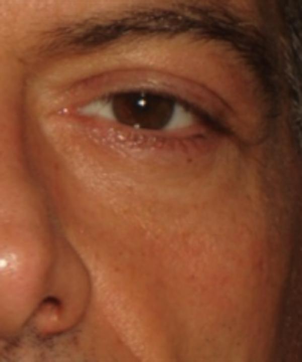 Eyelid Rejuvenation Gallery - Patient 5930183 - Image 2