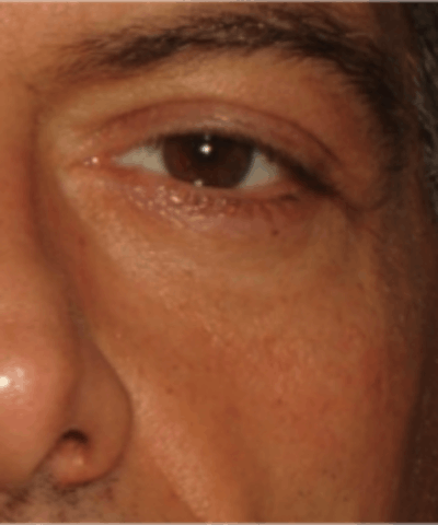 Eyelid Rejuvenation Gallery - Patient 5930183 - Image 2