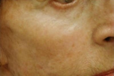 Fillers Gallery - Patient 5930184 - Image 2