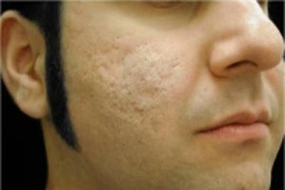 Acne Scarring Gallery - Patient 5930185 - Image 1