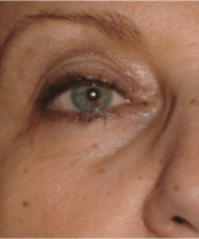 Eyelid Rejuvenation Gallery - Patient 5930187 - Image 11