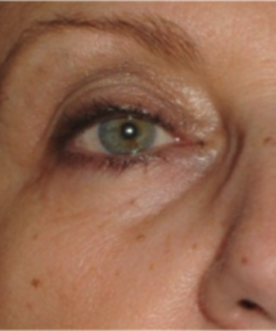 Eyelid Rejuvenation Gallery - Patient 5930187 - Image 1