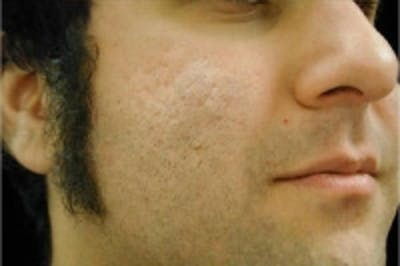 Acne Scarring Gallery - Patient 5930185 - Image 2