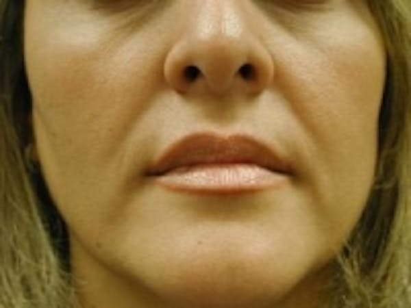 Fillers Gallery - Patient 5930186 - Image 1