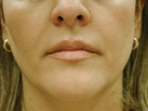 Fillers Gallery - Patient 5930186 - Image 2
