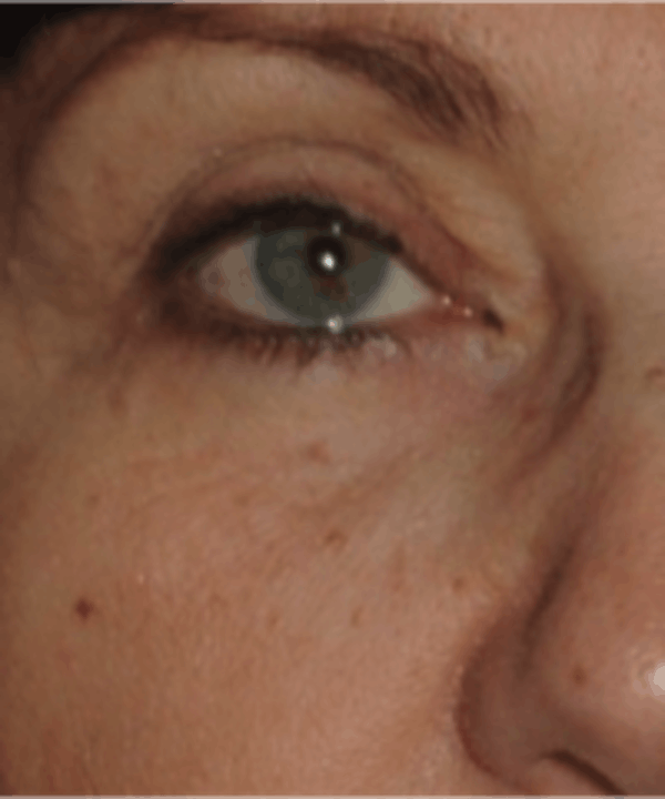 Eyelid Rejuvenation Gallery - Patient 5930187 - Image 2