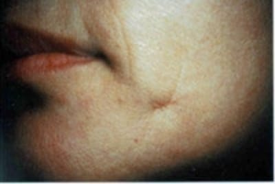 Acne Scarring Gallery - Patient 5930188 - Image 3