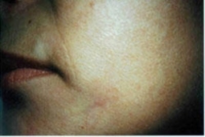Acne Scarring Gallery - Patient 5930188 - Image 2