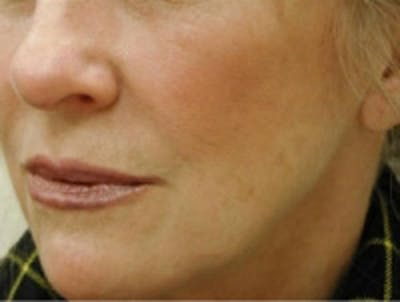 Fillers Gallery - Patient 5930189 - Image 2