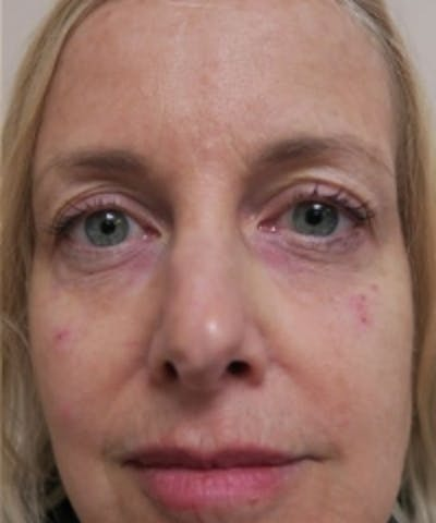 Fillers Gallery - Patient 5930190 - Image 2