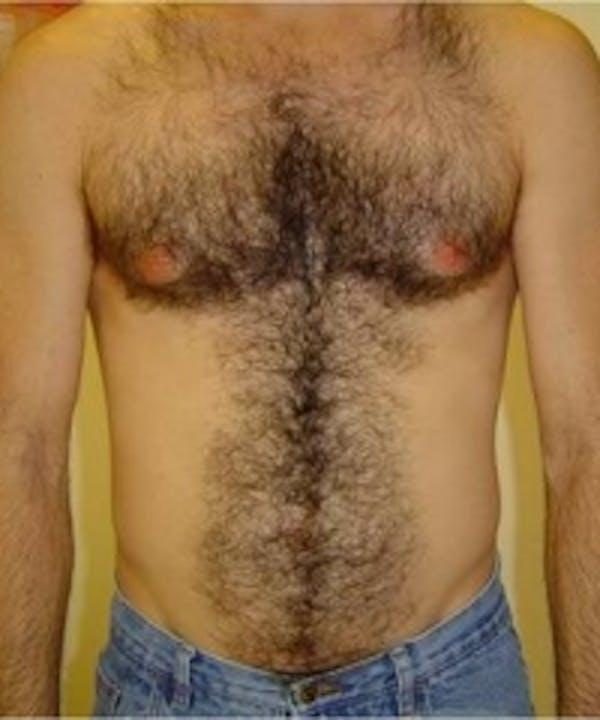 Laser Hair Removal Gallery - Patient 5930201 - Image 1