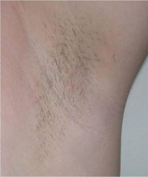 Laser Hair Removal Gallery - Patient 5930202 - Image 1