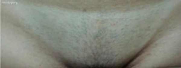 Laser Hair Removal Gallery - Patient 5930204 - Image 1