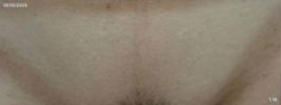 Laser Hair Removal Gallery - Patient 5930204 - Image 2