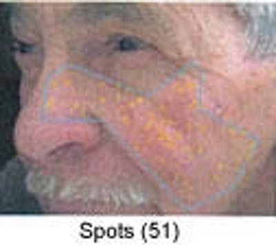 Sun Damage Gallery - Patient 5930207 - Image 2
