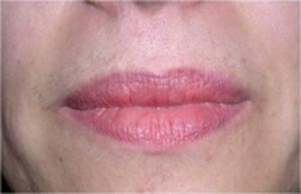 Laser Hair Removal Gallery - Patient 5930205 - Image 1