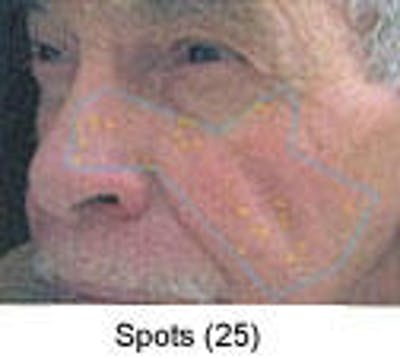Sun Damage Gallery - Patient 5930207 - Image 2