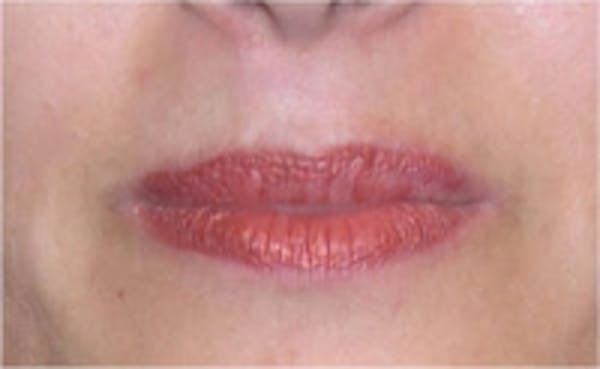 Laser Hair Removal Gallery - Patient 5930205 - Image 2