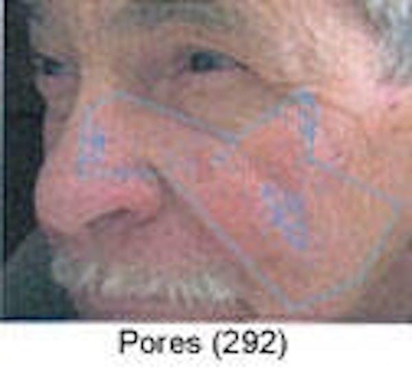Sun Damage Gallery - Patient 5930207 - Image 3