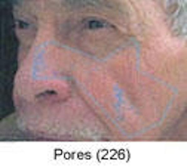 Sun Damage Gallery - Patient 5930207 - Image 4