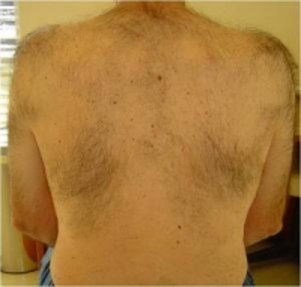 Laser Hair Removal Gallery - Patient 5930206 - Image 1